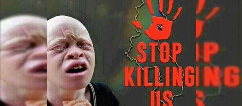 Court Sends Four to the Gallows for Albino Killing
